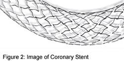 coronary-angioplasty-2.jpg